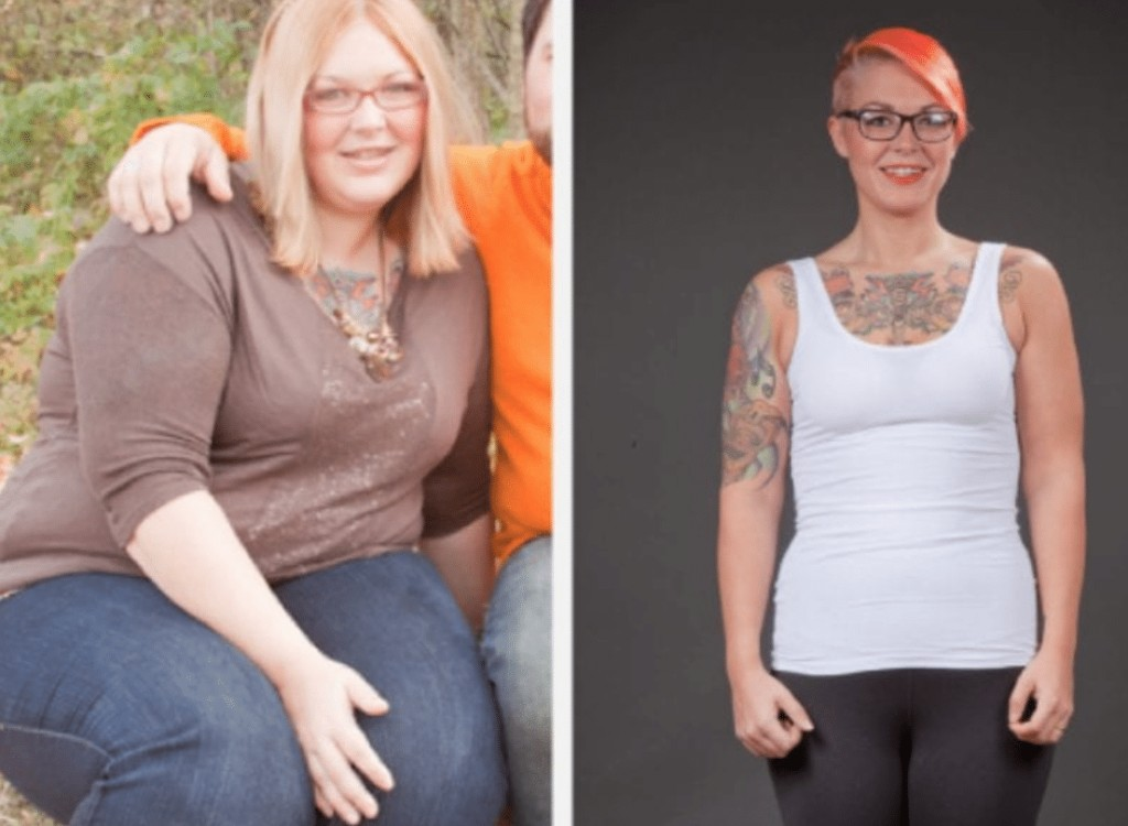 idealshape before and after pictures
